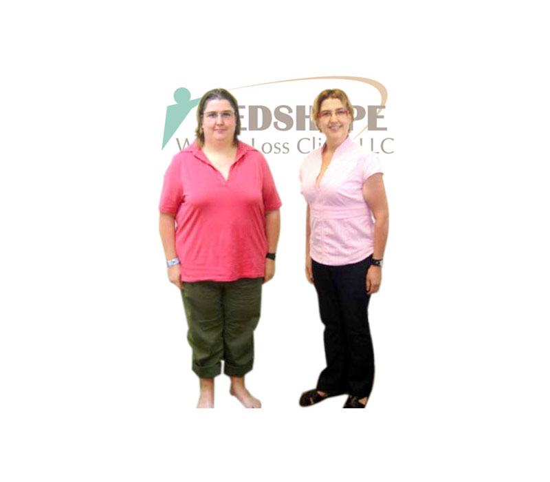 Before and After Weight Loss Photos - MedShape Weight Loss Clinics