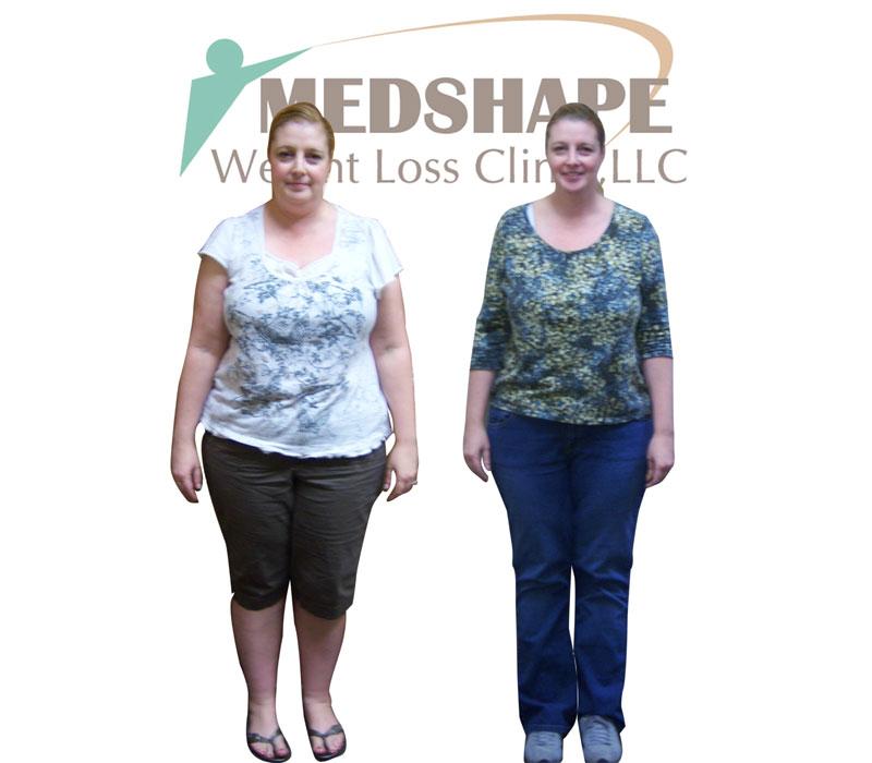 Dieta di anguria per risposte di perdita di peso e risultati