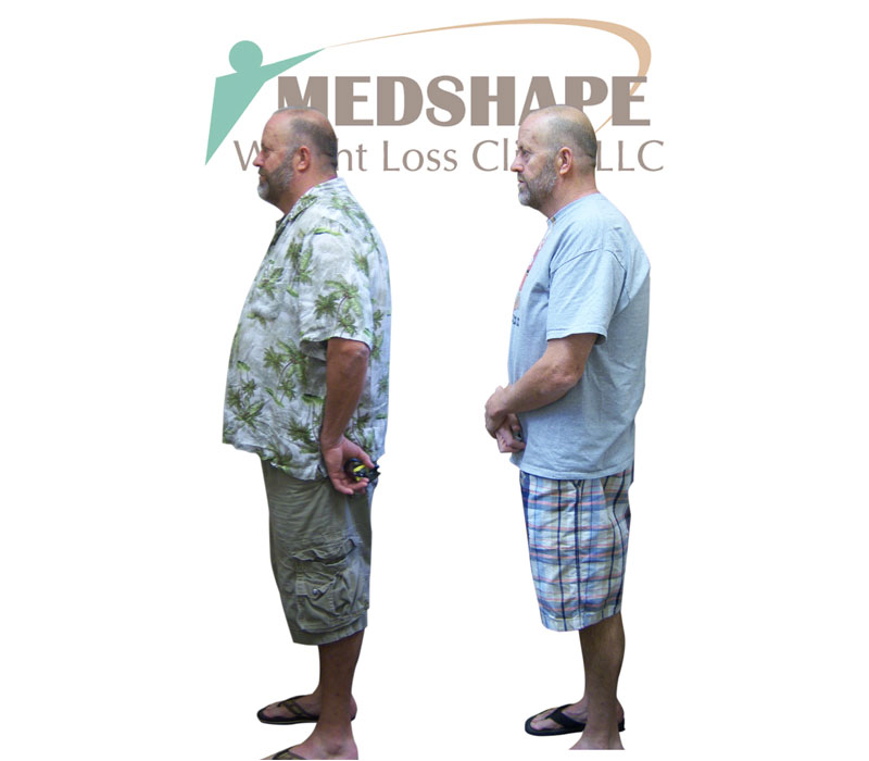 Weight Loss Before and After - Page 2 - MedShape Weight Loss Clinics