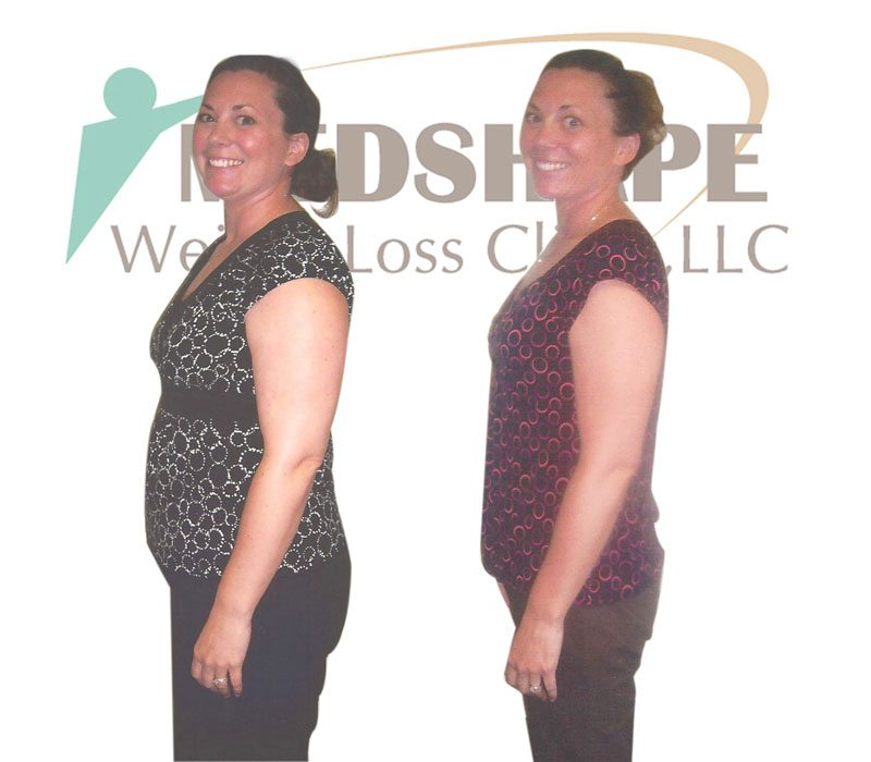 Weight Loss Programs In Scottsdale Az