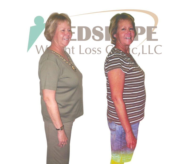 Weight Loss Programs In Mesa Az