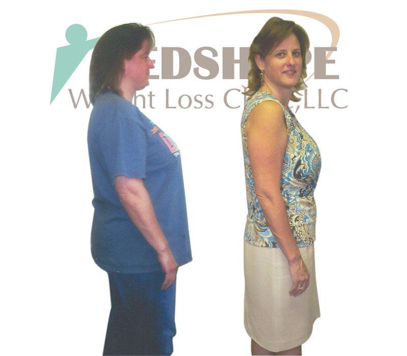 Weight Loss Programs Peoria Az