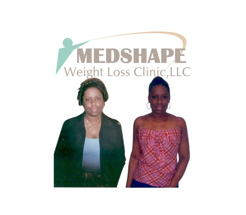 Weight Loss Before and After - Page 4 - MedShape Weight Loss Clinics