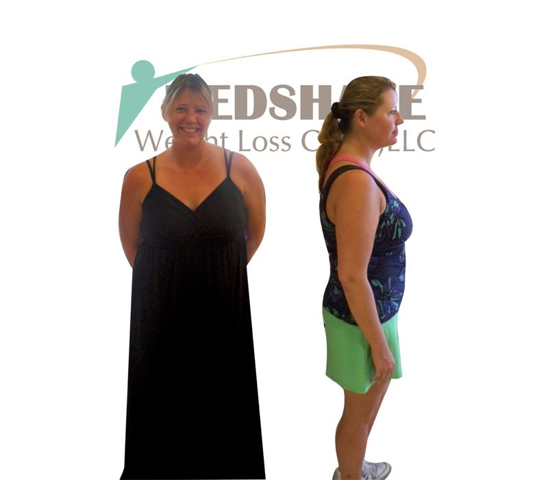 Weight Loss Before and After - Page 5 - MedShape Weight Loss Clinics