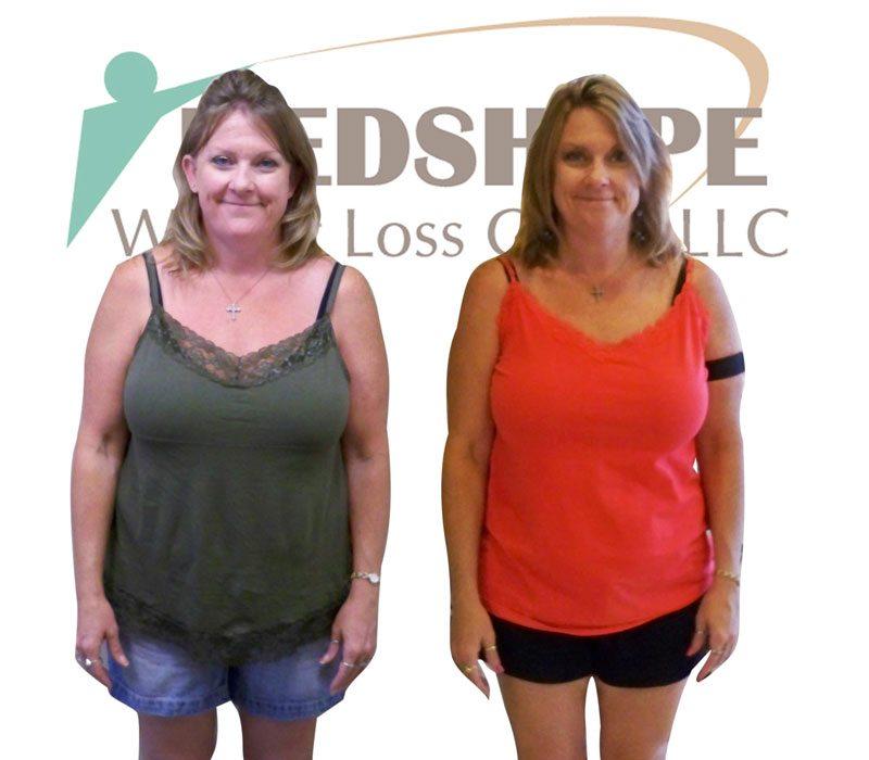 Weight Loss Programs Tempe Az