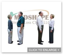 Before and After Weight Loss - Page 3 - MedShape Weight Loss