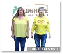MedShape Weight Loss   Before and After